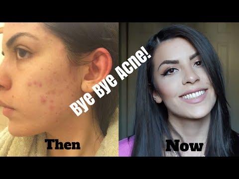 How I Got Rid Of My Acne - Birth Control???