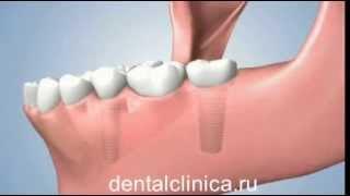 Лечение зубов красивая улыбка виниры коронки протезирование имплантация приятные цены(, 2014-03-25T19:51:12.000Z)