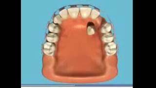 Благодаря брекетам можно сделать идеальным весь зубной ряд.