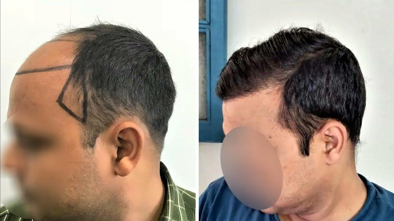 Very Hard Skin Patient's Successful hair transplant (SLIDESHOW)