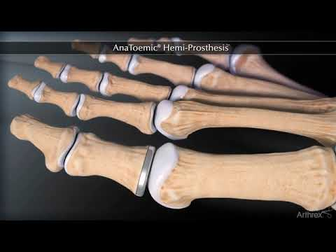 cauza artritei degetelor tratament articular în armenie