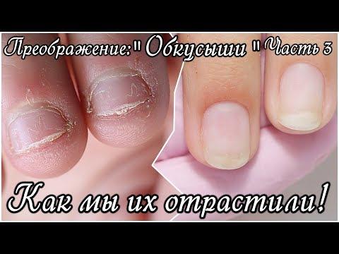 Как восстановить ногти после грызения