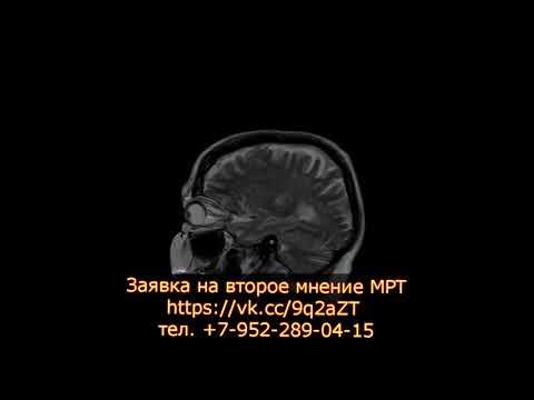 Дисциркуляторная энцефалопатия на заключении МРТ головного мозга