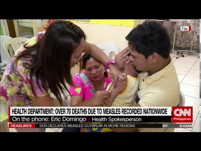 Health department declares measles outbreak in more areas