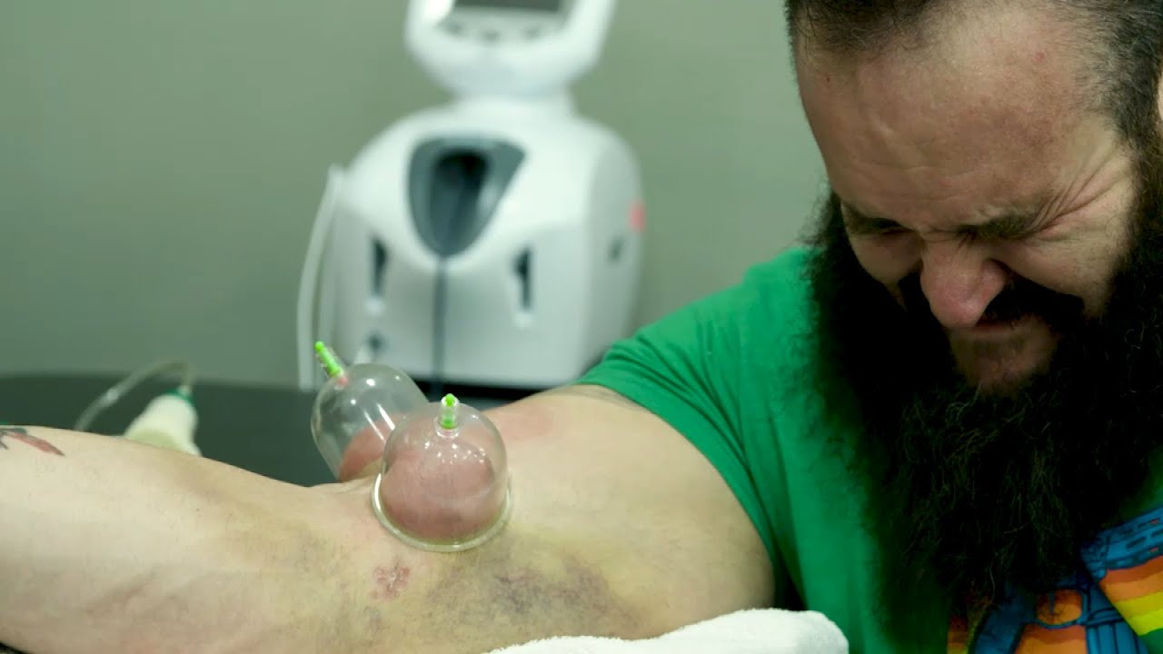 Download Braun Strowman's elbow surgery and harrowing rehab: Remaking The Monster - Episode 1