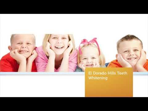 Dr. Michael B. Guess - Teeth Whitening in El Dorado Hills CA