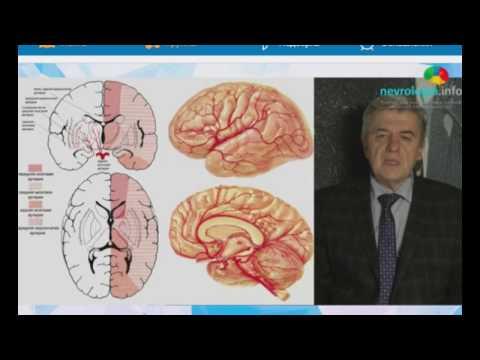 «ОНМК классификация, диагностика и лечение»  ч1