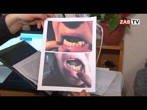 Виниры, сделанные читинке в частной клинике, отвалились спустя пару месяцев