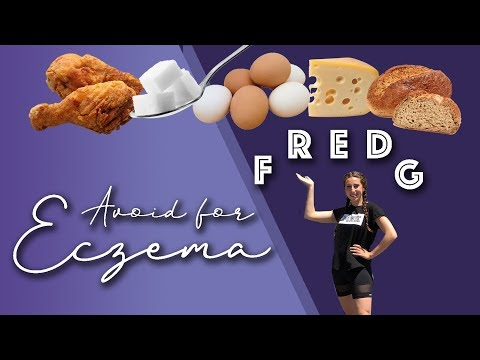 worst-foods-ever-for-eczema-/-what-are-fredg-foods?-//-michelle-mills