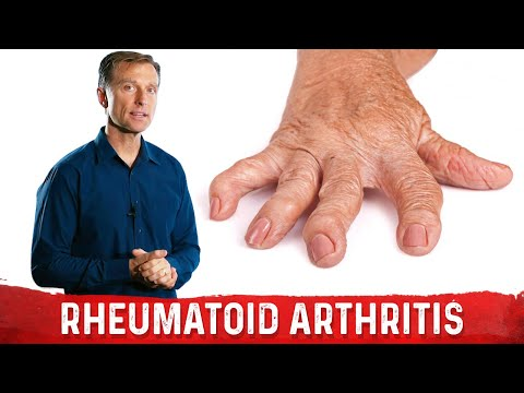 What I Would Do If I Had RA (Rheumatoid Arthritis)