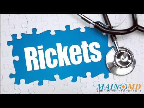 Rickets ¦ Treatment and Symptoms