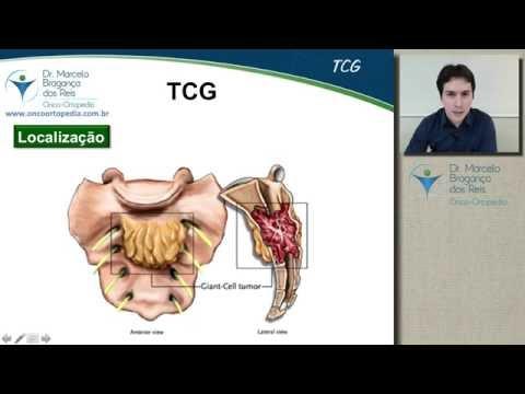 Tumor de células gigantes (TCG)