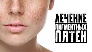 Лечение пигментных пятен