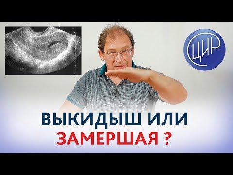 Выкидыш или замершая беременность? Чем отличается замершая беременность от выкидыша. Гузов И.И.