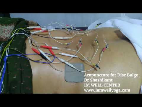 Lumbar Disc Bulge Acupuncture and Moxibustion - Dr Shashikant
