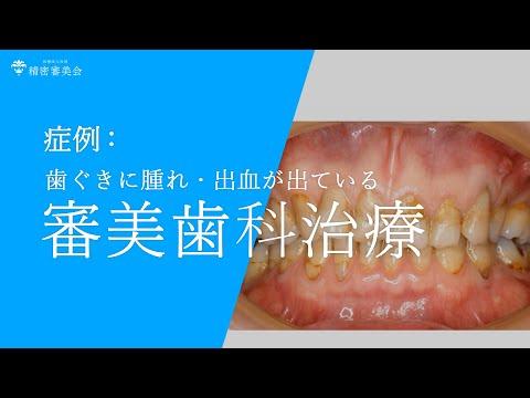 歯茎に腫れ・膿が出ている方の審美歯科治療  医精密審美会