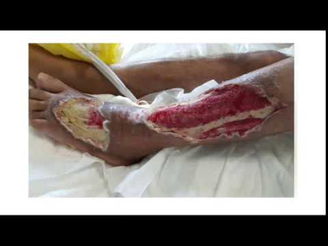VAC dressing, an excellent device in wound care