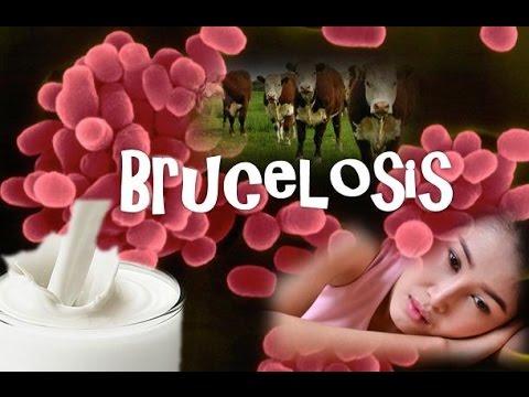 Brucelosis (Brucella)