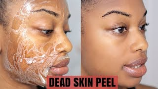 DEAD SKIN PEEL OFF MASK | Reduced Wrinkles, Remove Dark Marks & Shrink Pores | journeytowaistlength