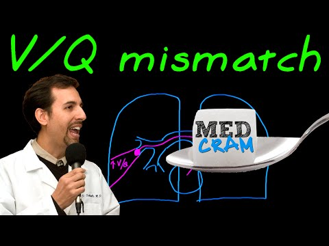 Ventilation Perfusion (VQ) Mismatch Explained Clearly