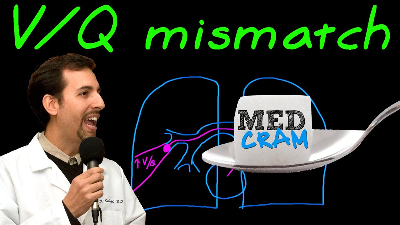 Whenever i come across a mismatched caption and picture i question - Ventilation Perfusion Vq Mismatch Explained Clearly By Medcram Com