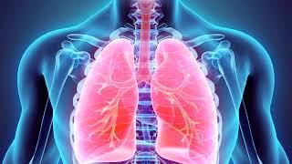 Pulmonar broncograma de edema
