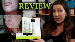 hqdefault - Mary Kay Acne Prone Skin Set