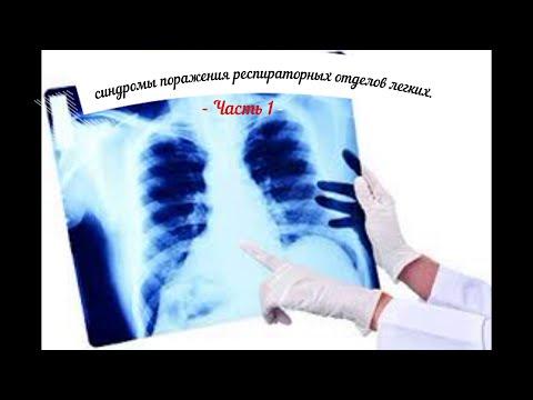 Пропедевтика внутренних болезней: синдромы поражения респираторных отделов легких. Часть 1