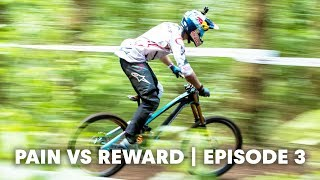 Hand and arm injuries in MTB. | Pain vs Reward E3