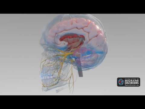 What Causes Migraine Disease? 5 Factors in Migraine Neurobiology