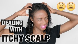 Natural hair | how to get rid of  ITCHY SCALP