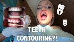 I GOT MY TEETH CONTOURED?!