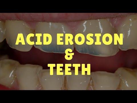Acid Erosion & Teeth (Symptoms & How to Save Enamel)