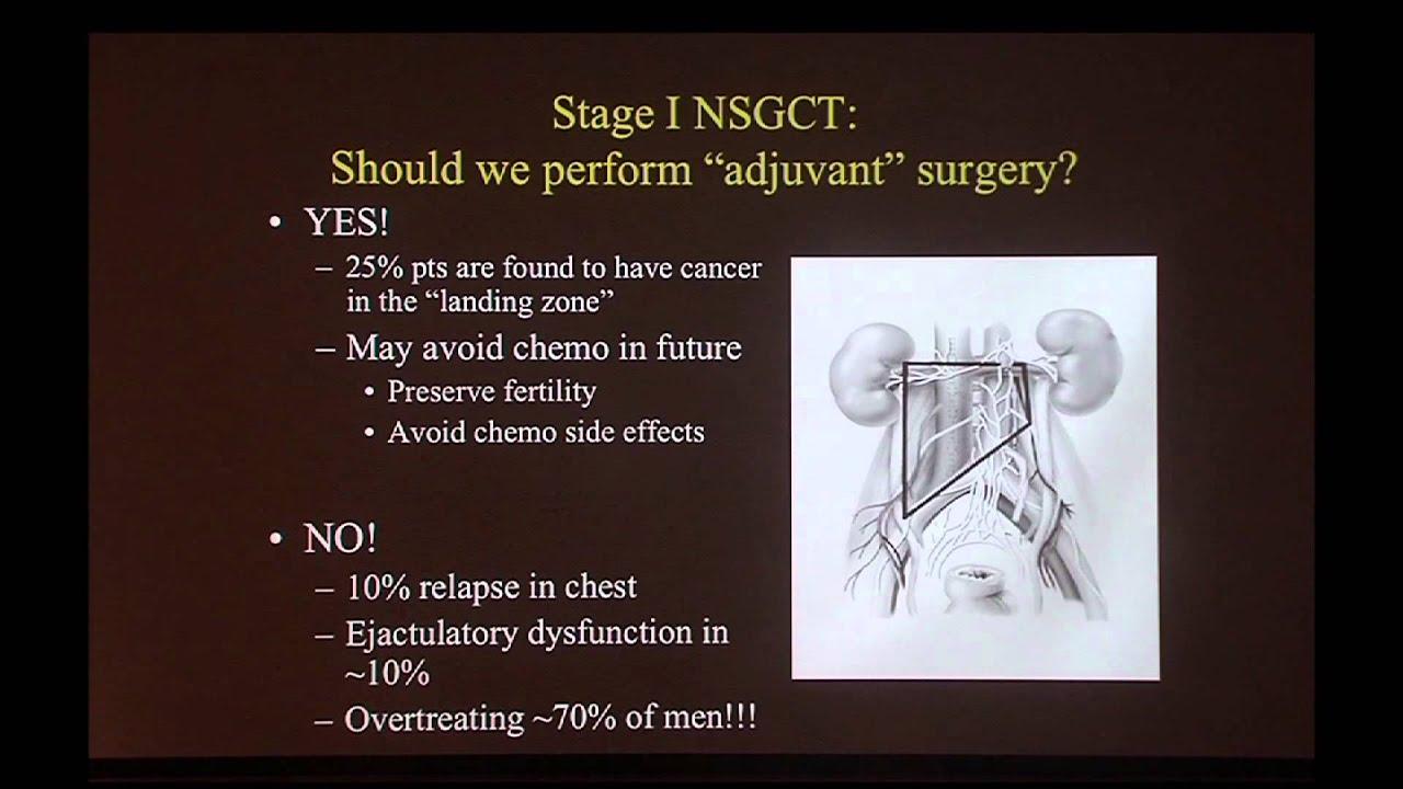 Testicular Cancer - YouTube
