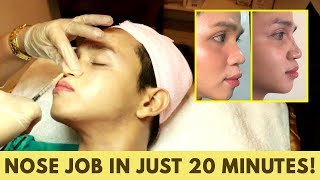 NAGPA RETOKE AKO NG ILONG!   My Non-Surgical Nose Lift Experience   Jc Fabuleux