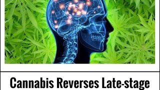 Cannabis Reverses Late stage Alzheimer's