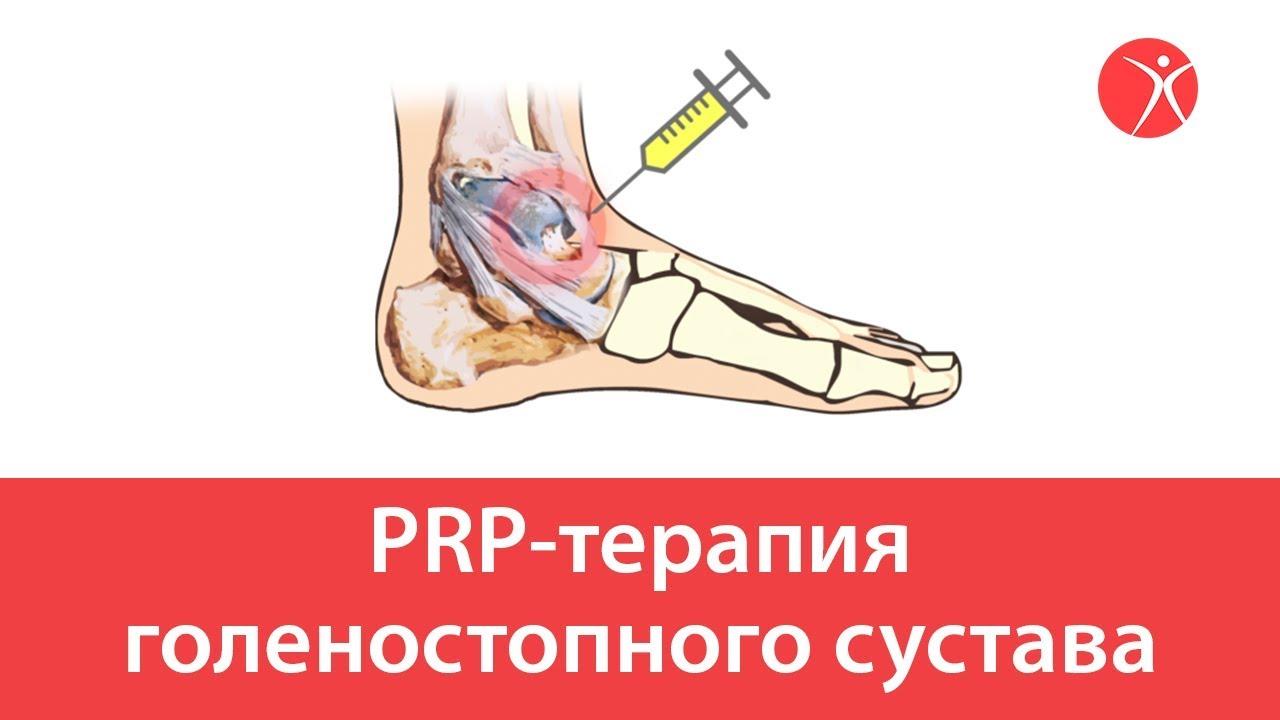 PRP-терапия голеностопного сустава. Видео