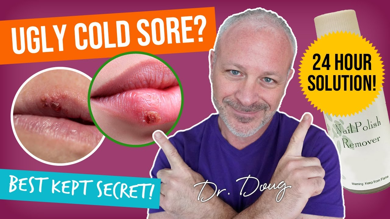Cold Sore Cure Nail Polish Remover Remedy Youtube