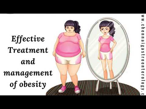 Weight Loss Treatment In Chennai | Obesity Management Tamil Nadu | Best Obesity Doctor In India