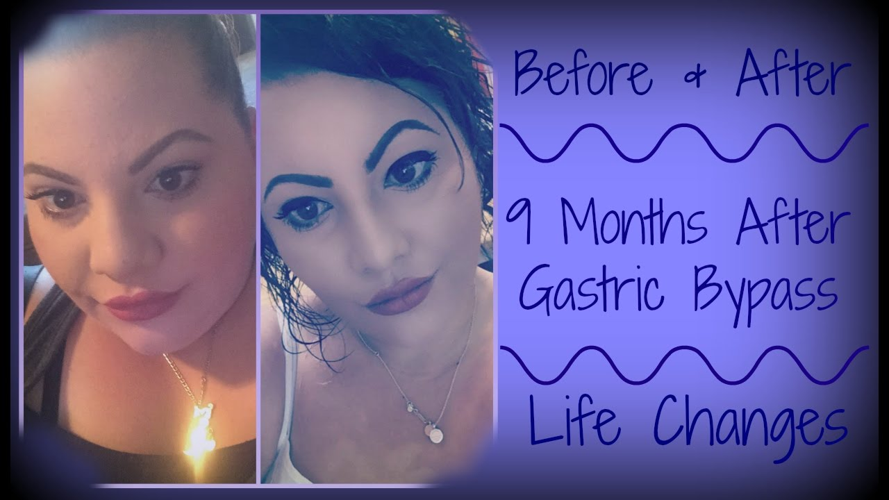 Before After 9 Months After Gastric Bypass Surgery