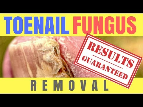 Toenail Fungus Removal - Toenail Fungus Removal At Home
