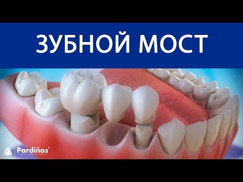 Как выглядит мост на зубах