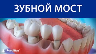 видео Сколько стоит поставить мост на зубы