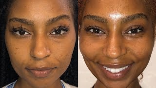 HOW TO GET RID OF DARK MARKS AND HYPERPIGMENTATION WITH GLEAMIN!