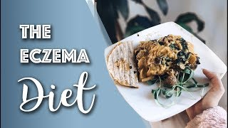 What is the eczema diet? This video is so important for you all to realize that healing eczema can be complicated especially the worse your skin gets. Want to ...