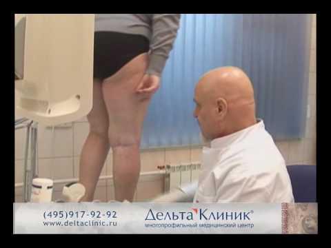 Сосудистые звездочки на ногах: причины и лечение, диагностика