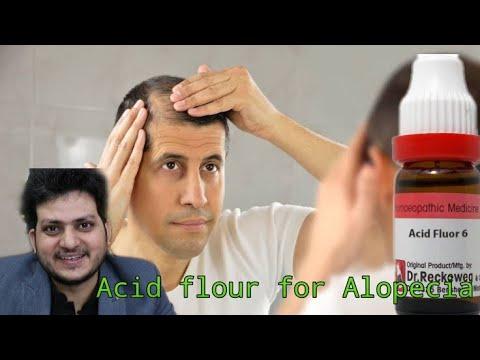 Homeopathic medicine  flouricum Acidum for alopecia | Live Dr kirti Vikram |