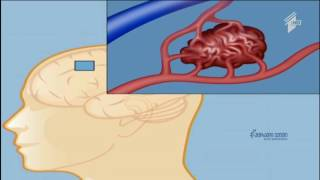 თავის ტვინის სისხლძარღვთა პათოლოგიები - სიმპტომები და რისკები