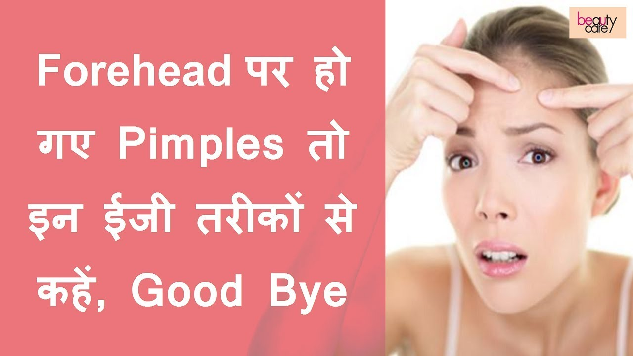 Get Rid Of Forehead Pimples With These Easy Ways Hindi Youtube