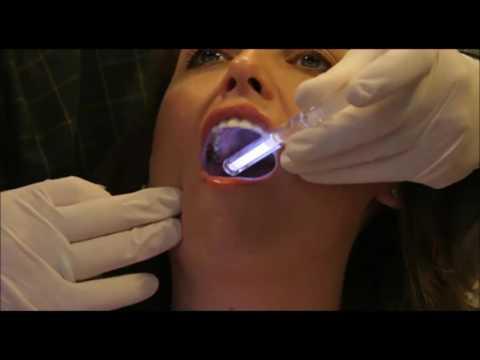 cancer buccal enflure de la langue langue gonflée